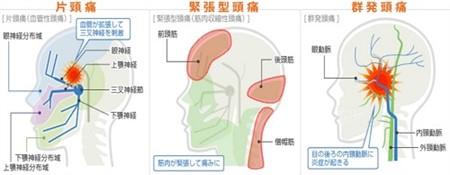 「頭痛 タイプ」の画像検索結果